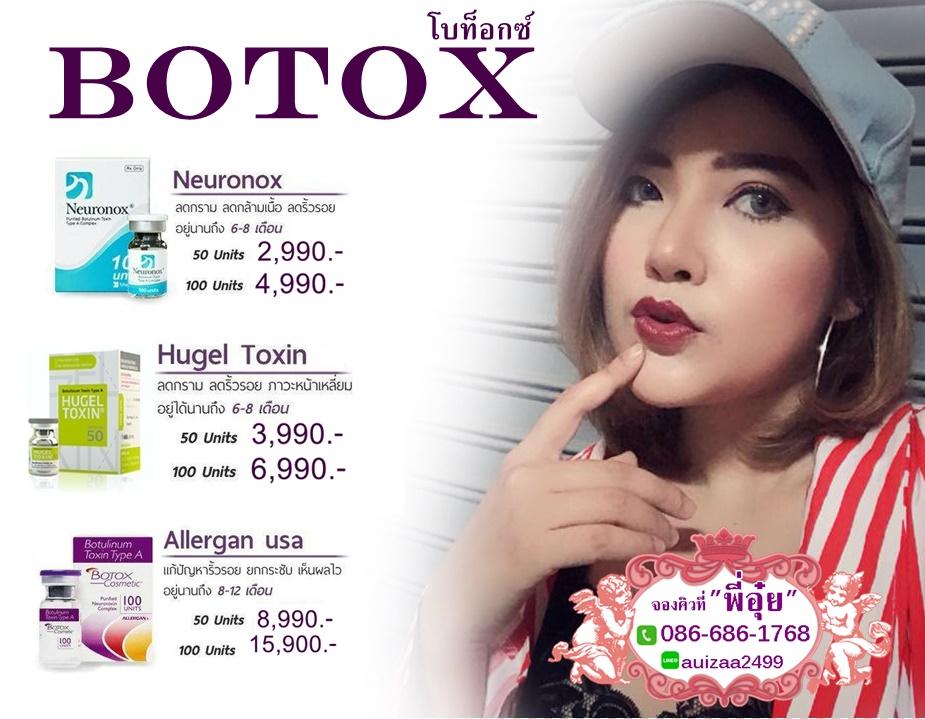 โบท็อกซ์ Botox